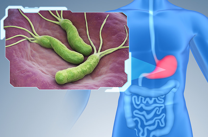 ピロリ菌の検査・除菌治療が受けられます